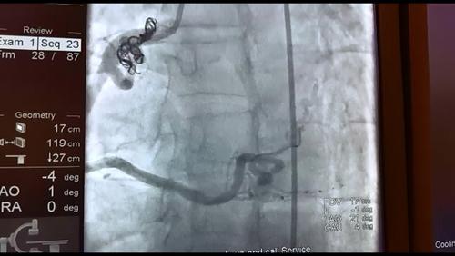 İşte Coil embolizasyonu yöntemiyle damar böyle kapatıldı